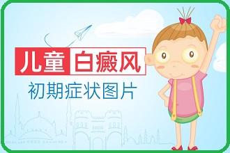 毕节看白癜风医院在哪-如何帮助儿童白殿风拥有好的生活习惯呢